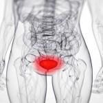 zapalenie pęcherza moczowego
