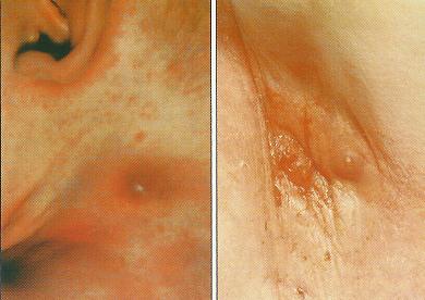 choroby gruczołów potowych