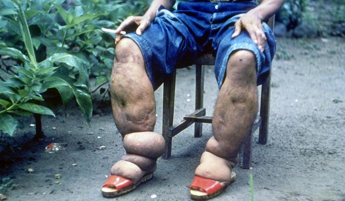 słoniowacizna obrzęk limfatyczny