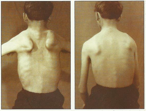 dystrofia mięśniowa u dzieci