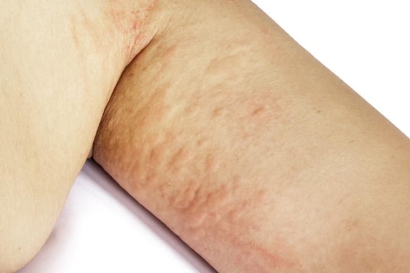 nieprawidłowe rogowacenie skóry