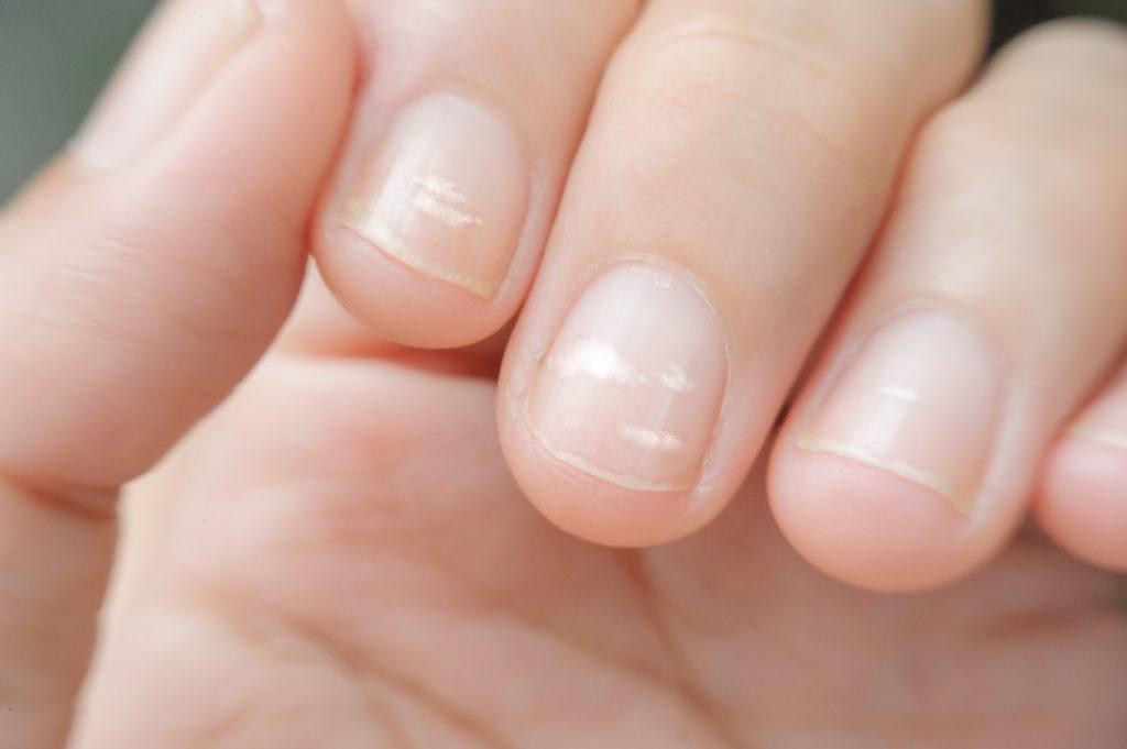 choroba paznokci