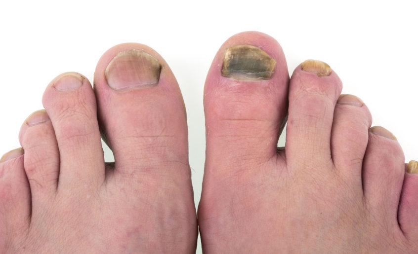 sine paznokcie choroba