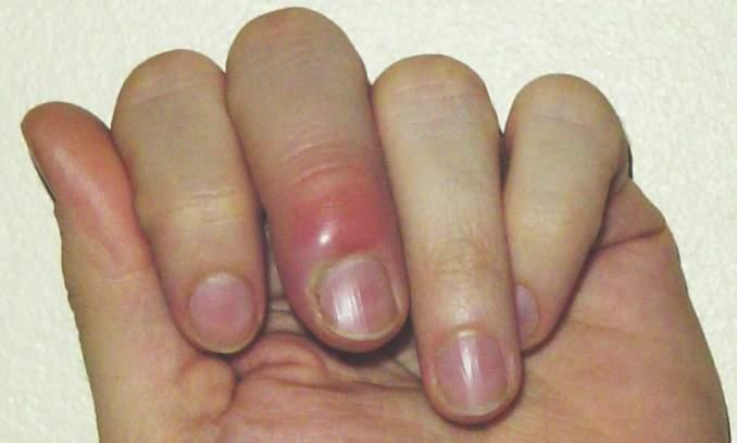 spuchnięty palec zanokcica