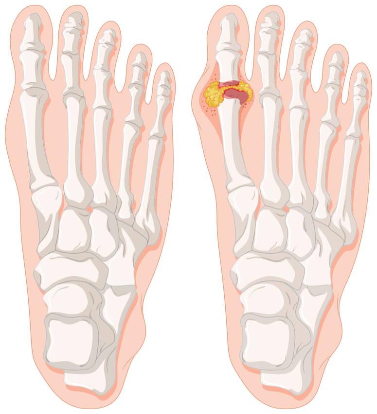 stopy podagra przyczyny objawy leczenie