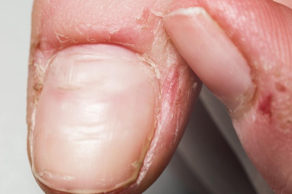 uszkodzone paznokcie choroba zanokcica
