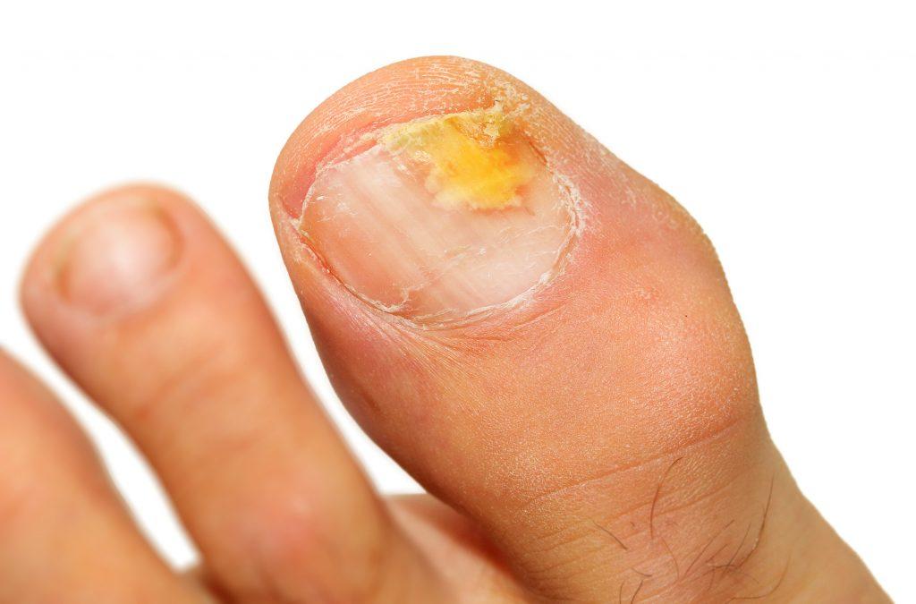 zanokcica choroba paznokci