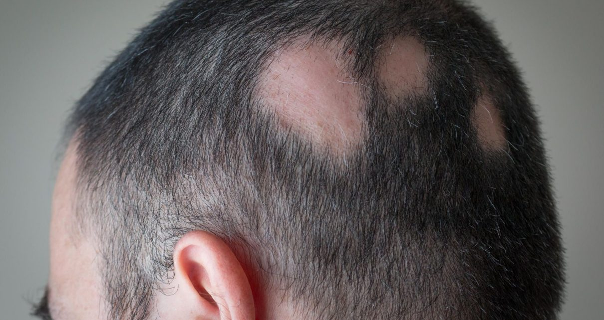 przeszczep włosów łysienie FUE