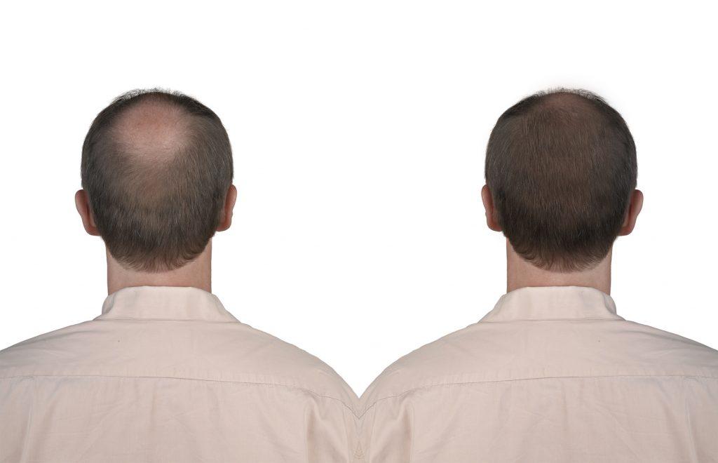 efekty kuracja przeszczep włosów