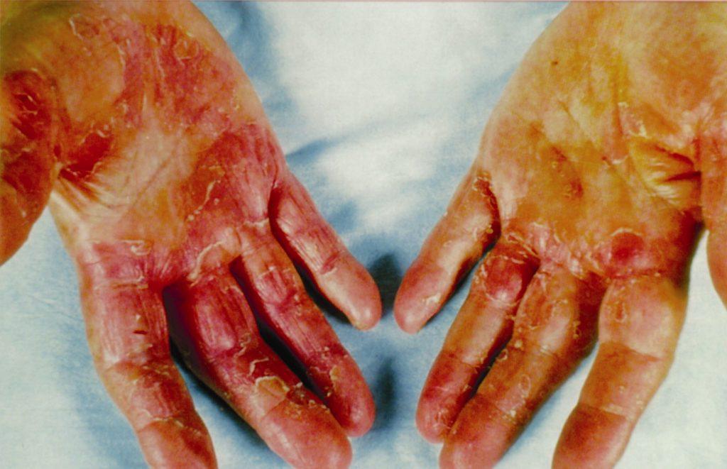 wyprysk kontaktowy u rąk