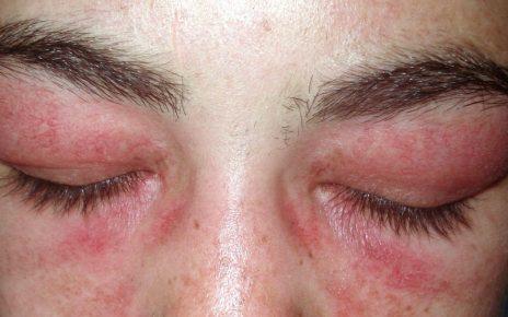 zapalenie skórno mięśniowe na twarzy