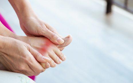 Kobieta z zapaleniem stawów trzyma się za bolącą stopę