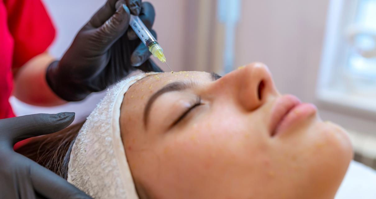 Kobieta podczas mezoterapii igłowej
