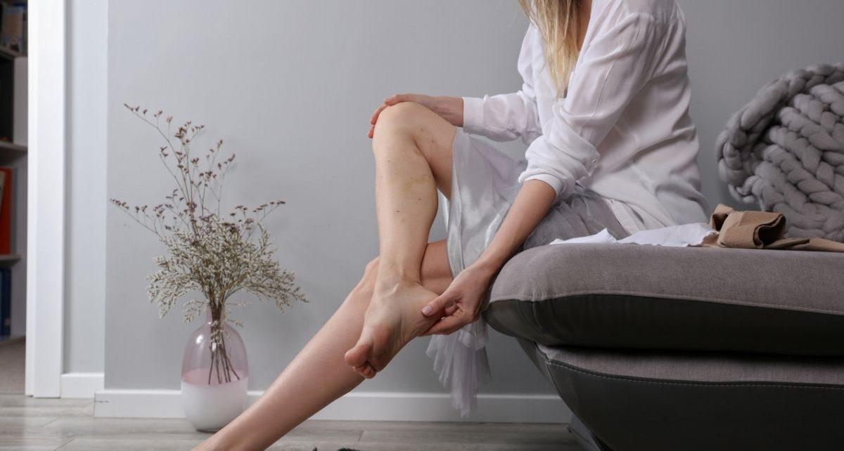 Kobieta przed zabiegiem usuwania żylaków nóg w Gdyni